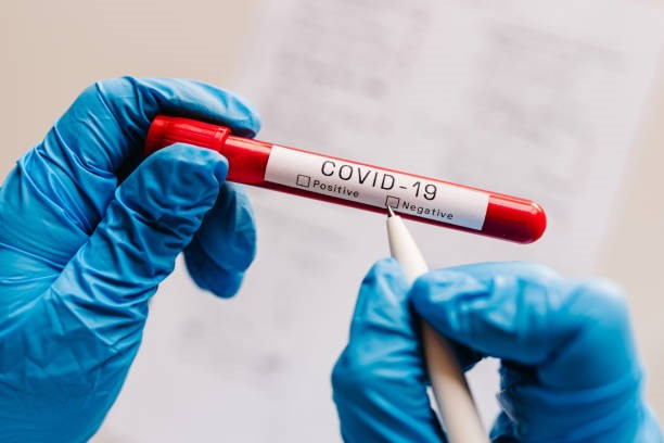 Francetest computer flaw leads to leakage of Covid-19 test results